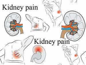 Where Your Kidneys Are Located And Where Kidney Pain Is Felt