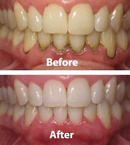 Laser Periodontal Disease - Austin Laser Dentist - Helen ...