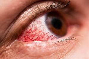 Is Pink Eye Rubbing You The Wrong Way Wellness Us News