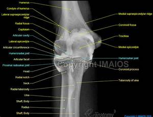 Joint-X-Ray-of-the-Elbow-arthrogram / Elbow Joint ...