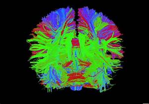 The Art Of Science  Take A Look At The Future Of Brain Imaging