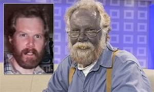 Paul Karason 'Papa Smurf' dies: 'Blue man' suffers heart ...