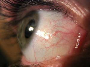 New Glaucoma Treatment May Restore Vision In Those With