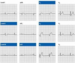 Ekg  Acute Myocardial Infarction Patterns