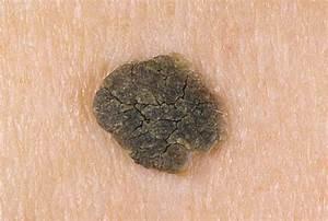 Папиллома лечение полынью