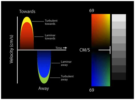 color flow doppler colour color doppler standard views