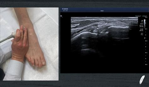 Challenging Aspects of Foot and Ankle Ultrasound - Bird ...