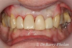 Full Mouth  U0026 Smile Rehabilitation With Orthodontics