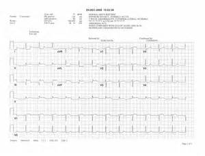 Cheat Sheet for EKG Rhythm Strips