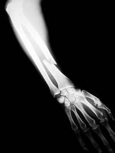 Minor Fractures