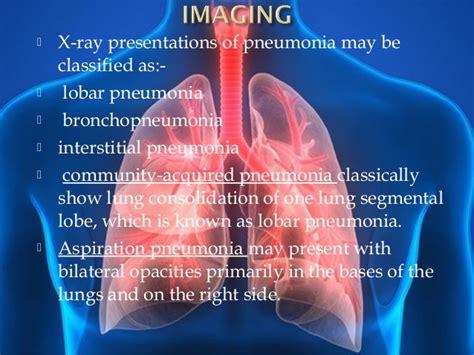 pneumonia ct chest ray