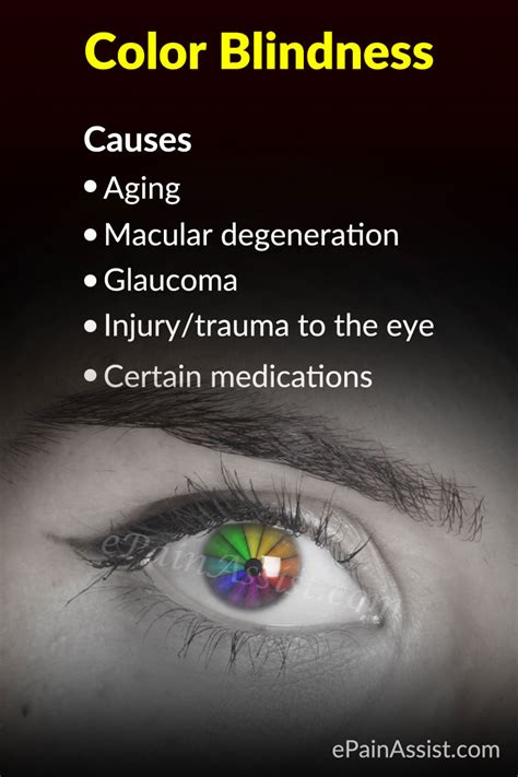color blindness symptoms color blindness or color vision deficiency causes symptoms