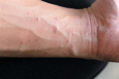 Scabies Signs Symptoms Otc Treatment Home Remedies