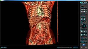 Human Body Revealed In Full By New Digital Autopsy Scanner