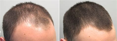 Does Rogaine Work? Vertex, Temple, and Hairline