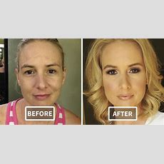 22+ Beforeandafter Pics Reveal The Power Of Makeup By