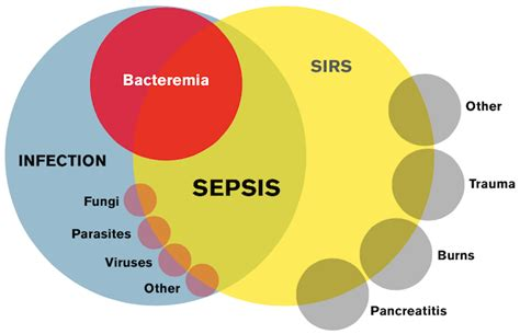 Sofa Score Calculator Excel by 100 Sofa Sepsis Pdf 2016 Organ Dysfunction