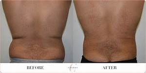 Male Back & Love Handles Liposuction Before & After