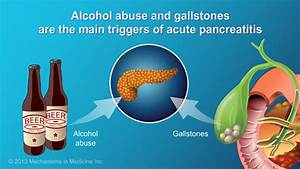 Acute Pancreatitis Treatment that is Supportive as ...