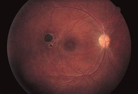 frosted branch angiitis  ocular toxoplasmosis