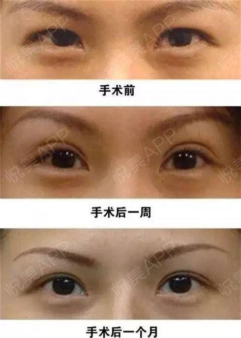 双眼皮手术有几种做法?_悦美整形
