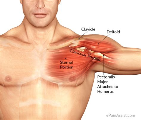 Pectoralis Major Inflammation Treatment Pt Causes Symptoms