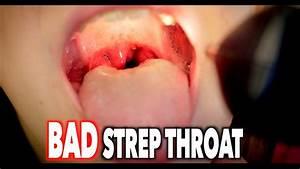 Bad Strep Throat  With Swollen Nodes