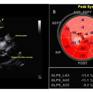echocardiogram   parasternal short axis view