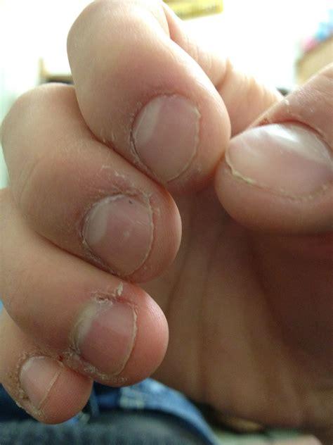 Nail Biting Wikiwand