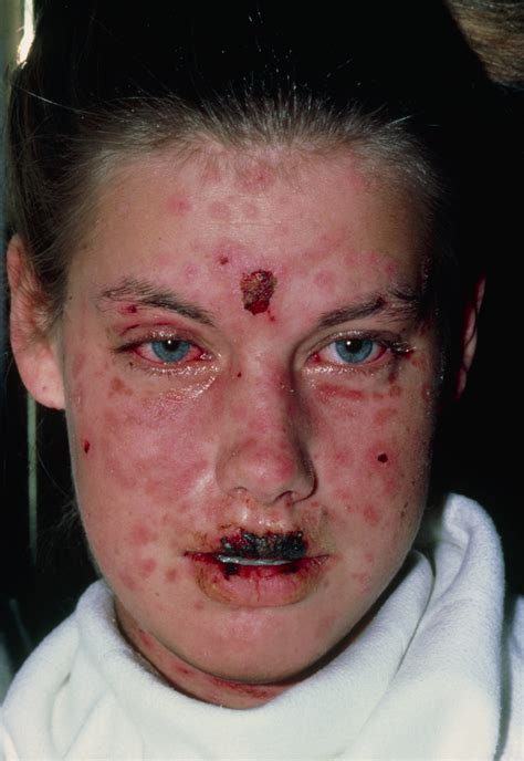stevens johnson syndrome sjs  toxic epidermal