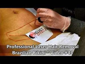Professional Laser Hair Removal Brazilian Bikini Video
