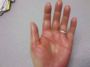 shingles on palms of hands - pictures, photos