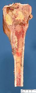 Osteogenic Osteosarcoma - Humpath Com