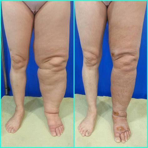 lymphoedem linkes bein  doccheck pictures