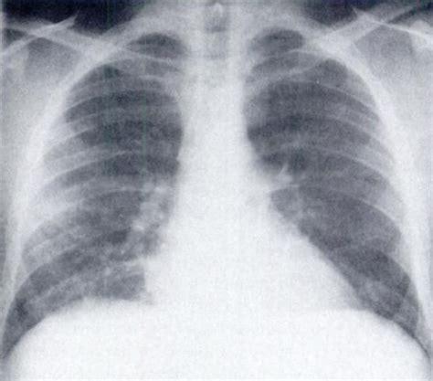 localized leukemic pulmonary infiltrates case reports
