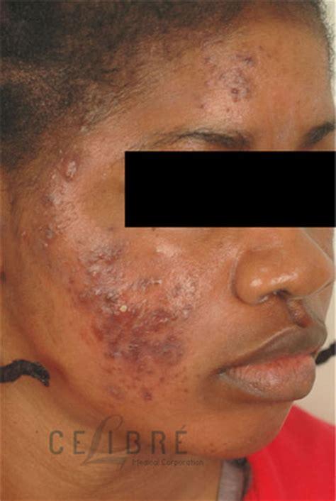 acne scars dark spots