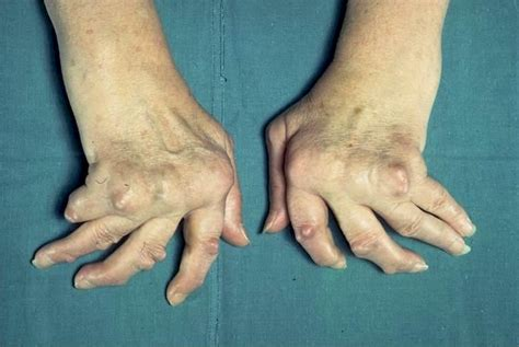 medical pictures info arthritis hands