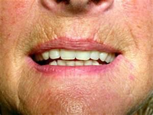 Spannbettlaken 100x200 Mit Hohem Steg : zahnimplantate beispiele mit zahnersatz von dr peter miramed salzburg ~ Markanthonyermac.com Haus und Dekorationen