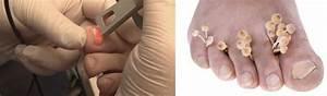 Средство для профилактики и лечения грибка на ногтях ног