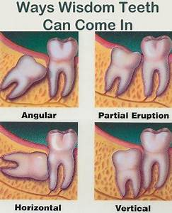best pain relief for toothache