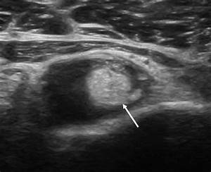 Ultrasonography Of The Biceps Tendon In Transverse View Showed Bicep