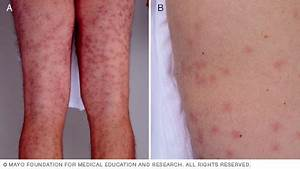Rash 101: The 5 Most Common Types of Skin Rashes ...