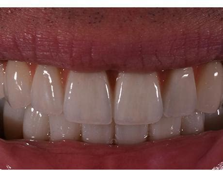If the doctor prescribes antibiotics, at this time it is better to if you do not have at least one tooth in your mouth, you will feel it, it will be hard for you to chew. Teeth-In-A-Day Specialist - Campbell, CA: Ueno Center Dental Specialists: Board Certified ...