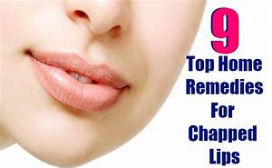 9 Top Home Remedies For Chapped Lips Search Home Remedy
