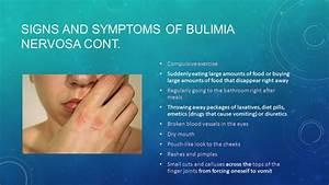 Bulimia Essay Anorexia Vs Bulimia Essay Bulimia Essay Bulimia  Bulimia Essay Pay To Do Best Best Essay On Hillary Clinton Custom  Scholarship Essay Proofreading Service