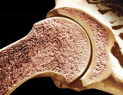 What Is Cancellous Bone Made Up Of Socratic