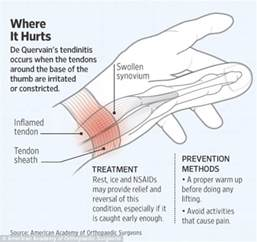 Tendonitis Wrist Thumb Pain
