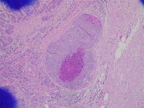 Intraductal Carcinoma