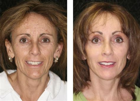 Chin Enhancement Fort Lauderdale | Chin Augmentation Fort