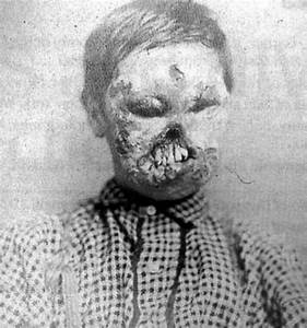A small boy whose face was ravaged by Congenital Syphilis ...